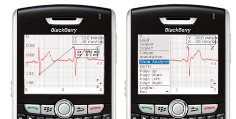 mVisum for BlackBerry EKG Screen Shots